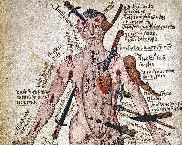 Hey Look Everyone Its The Medieval Wound Man