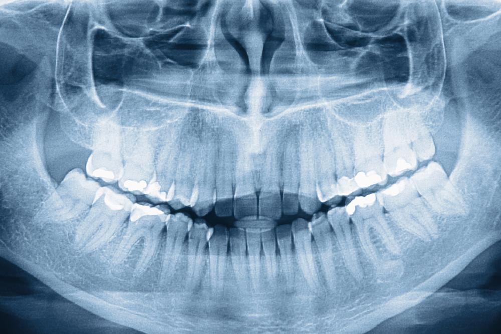 The Year of Grinding Teeth